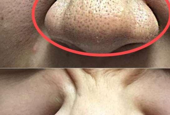 毛孔粗大如何改善 毛孔粗大的原因_用护肤品的步骤