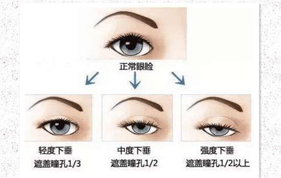 眼睑下垂会影响视力吗 细数上睑下垂的危害