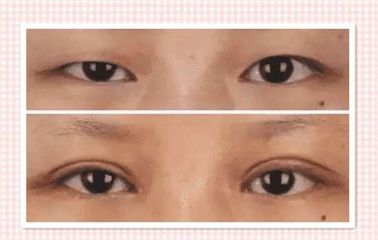 眼睑下垂会自己好吗 能自愈的话还要手术有何用
