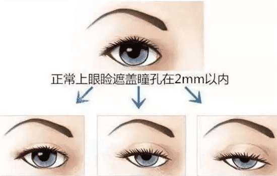 眼睛提肌手术示意图 看完你还敢做吗