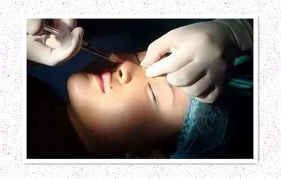 玻尿酸隆鼻后眉心鼓包 形成鼓包和疙瘩原因有哪些