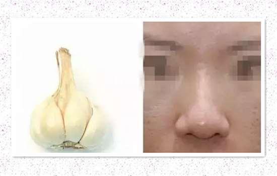 蒜头鼻很吃藕 蒜头鼻要怎样整形才能变好看