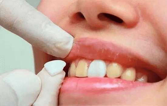 什么是牙齿贴片 微创性牙齿美白方式