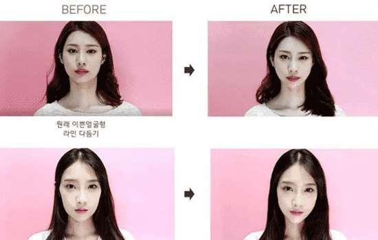 韩国瘦脸贴有用吗 瘦脸贴是否可以用双眼皮贴替代