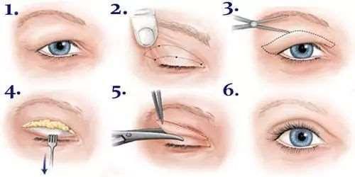 双眼皮是埋线好还是割的好 你知道做个双眼皮有多美吗?