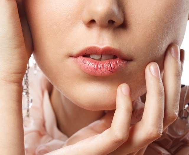 嘴唇黑色素沉淀怎么去除 有哪些方法