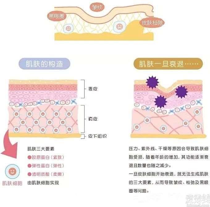 赴日医美 用纤维芽细胞移植阻击肌肤衰老
