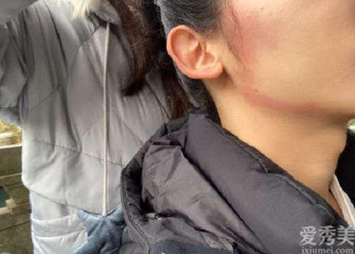 护肤攻略:用甲硝唑凝胶祛痘应对口罩脸过敏现象可行吗?