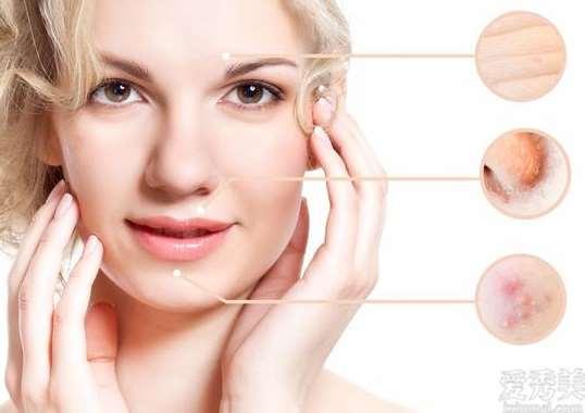 敏感肌群体要怎么医护皮肤?刷果酸還是服药?