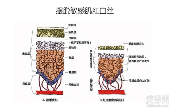 放心!有美薏升的修复敏感肌红血丝专家产品在,你每天都可以美美哒啦