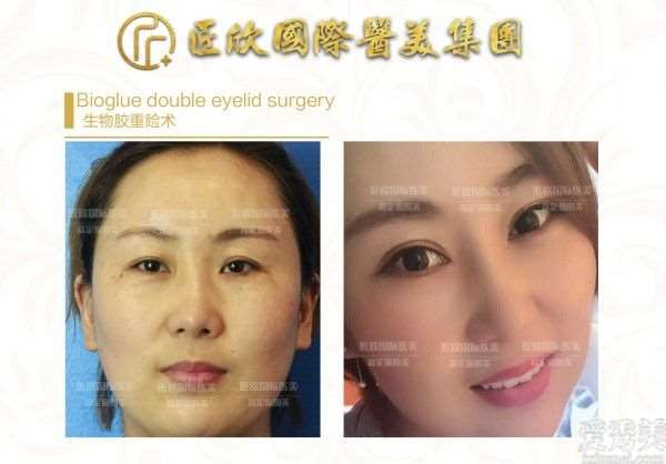 匠欣国际医美吴限旭院长谈: 眼部类整形及面部年轻化最新趋势