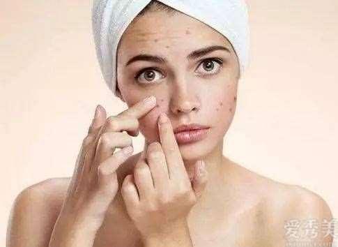 问题性皮肤为什么那么烦?你知道原因吗
