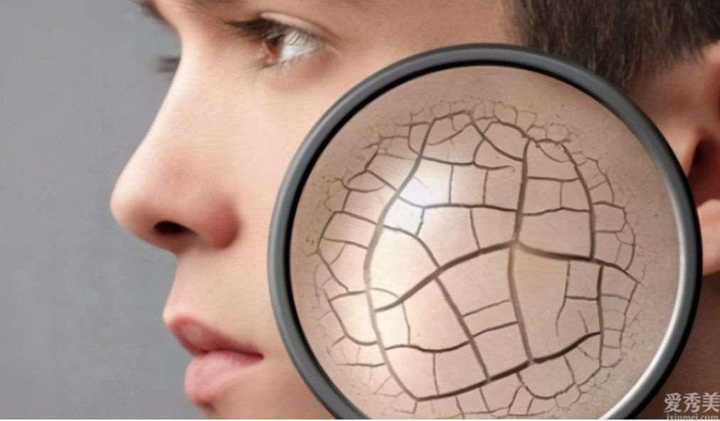 面部皮肤干燥有褶皱,缓解冬季瘙痒的七种方法