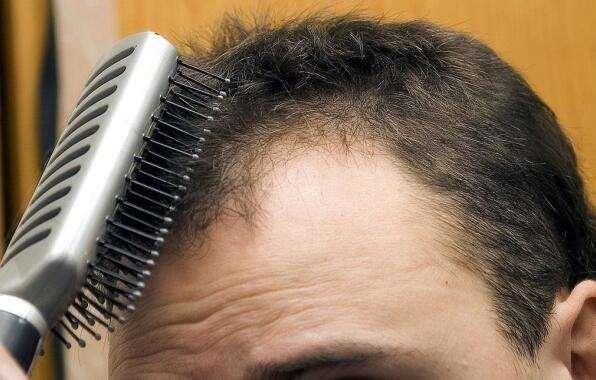 生发方法,简单4条,让头发长得又快又多
