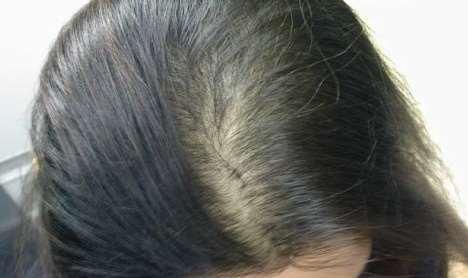 女性头顶头发稀少怎么办,4个好用的生发小妙招