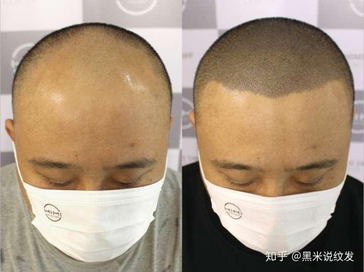 关于脱发的谣言,有几个是你曾经相信的?