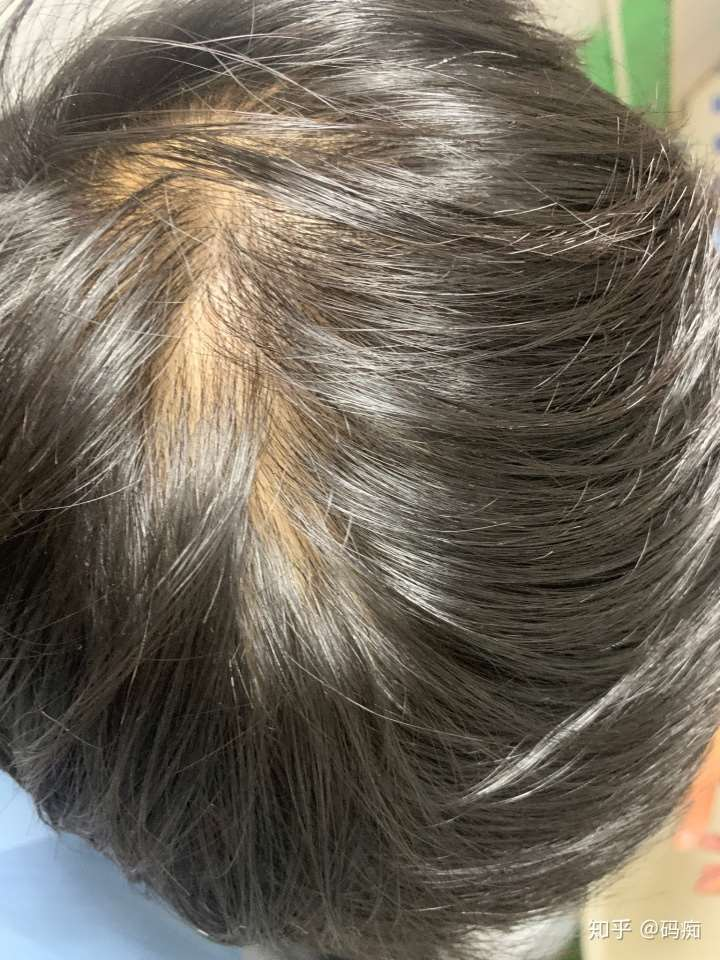 雄激素脱发,决定开始写脱发经历