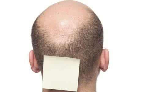 什么程度掉头发才算脱发?脱发应该进行哪些检查