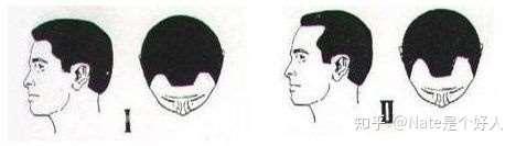 教你如何判断自己是否雄脱,以及脱发等级是几级