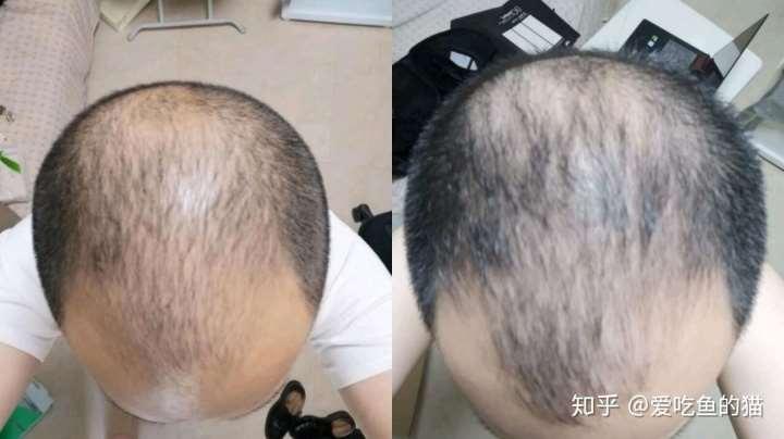 激光生发帽(生发仪)选购推荐攻略:让你拥有一头乌黑的头发(持续更新)