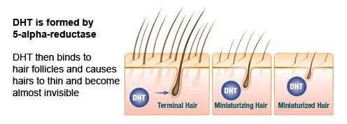 脱发严重是你对体内这种激素太敏感了