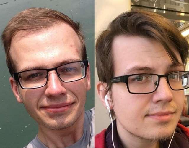 咖啡因与雄性脱发