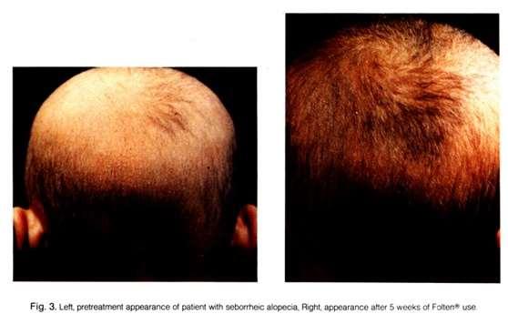 浅谈雄性脱发的预防