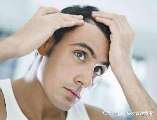 五种常见的治疗脱发及生发的方法,你适合哪种呢?