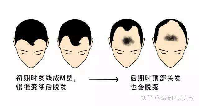 如何自己判断是不是雄性激素性脱发(雄脱),雄脱怎么办?