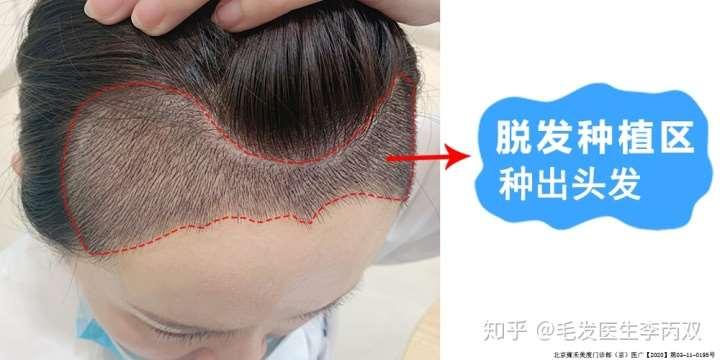 目前治疗脱发有效率高的三种方法,看完你就明白了!