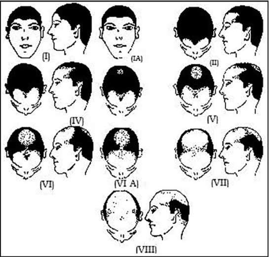 雄性脱发的等级划分