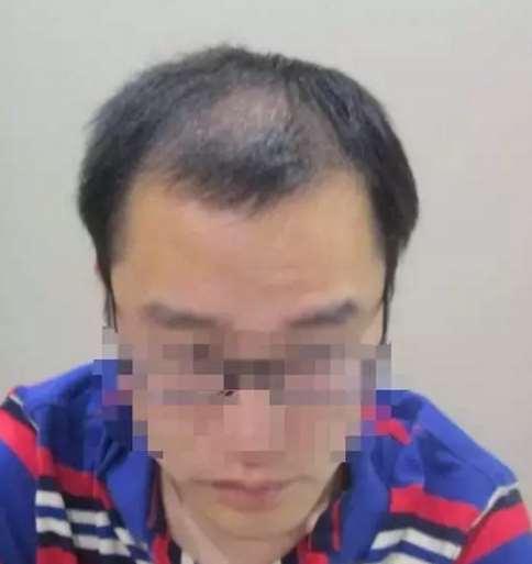发友求助:植发会损伤周围的原生发吗?一定要实话实说呀!