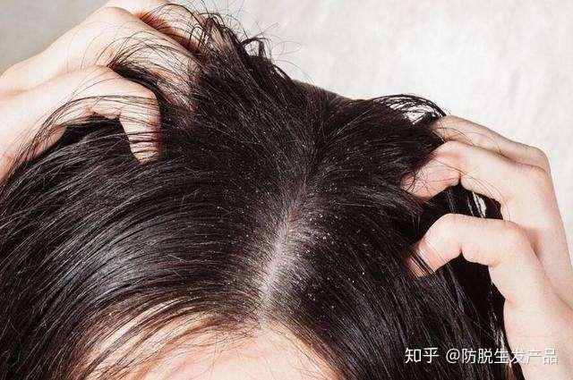 头发出油厉害还脱发怎么办 头发一天就油,怎么办