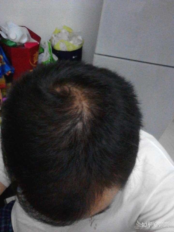 脱发 单用米诺地尔将近十年感受