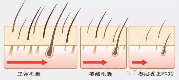 那些民间治疗脱发的谣言(下)