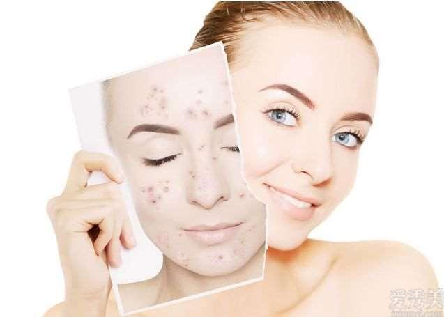 头上长出许多脸上痘痘,是由于身体废弃物太多?