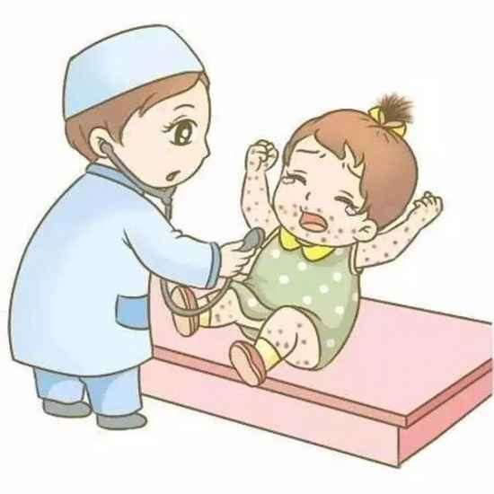 宝宝湿疹的饮食要如何调理 宝宝湿疹妈妈可以吃牛肉吗
