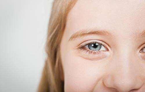 眼角痒是怎么回事?而且越揉越痒