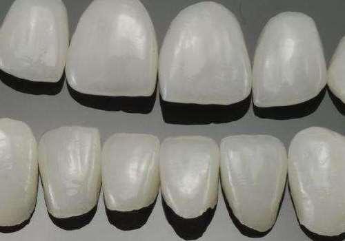 烤瓷牙能洗牙吗 烤瓷牙和种植牙有什么区别
