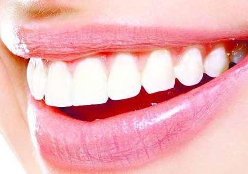 烤瓷牙怎么装上去的 烤瓷牙怎么变白