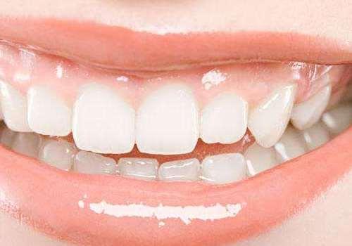 烤瓷牙会引起哪些疾病 烤瓷牙适合龅牙做吗
