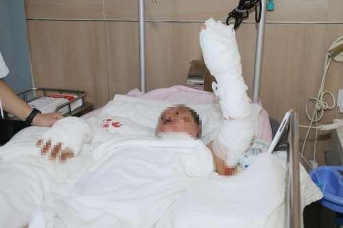 西安国际医学中心整形医院苏映军主任付德丰医生联手成功施救液化气闪爆烧伤宝妈