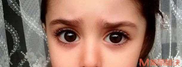 日本医生手术方法揭秘:眼睑下至,眼尾移动与倒睫手术丨日本整容整形