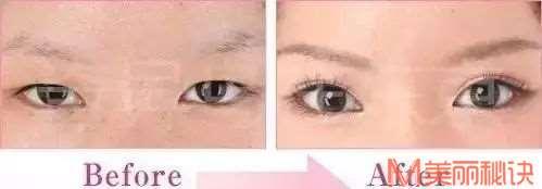 专业医美分析!你的眼睛需要哪些调整?|日本整容整形