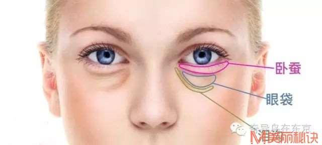 别让双眼暴露你的年龄!你还在被眼袋困扰吗?丨日本整容整形