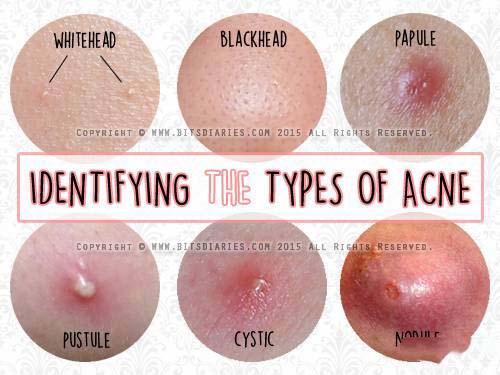 护肤和化彩妆的正确步骤6_天天面对电脑护肤步骤