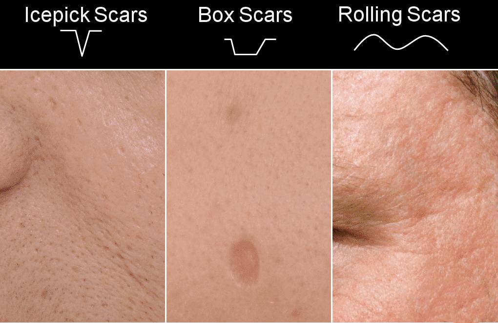 护肤品护肤的正确顺序是什么意思_保湿护肤品使用步骤
