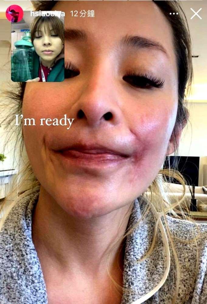 萧亚轩首度公开被狗咬伤的面部疤痕,自曝脸细胞坏死一度感到厌世_明星新闻